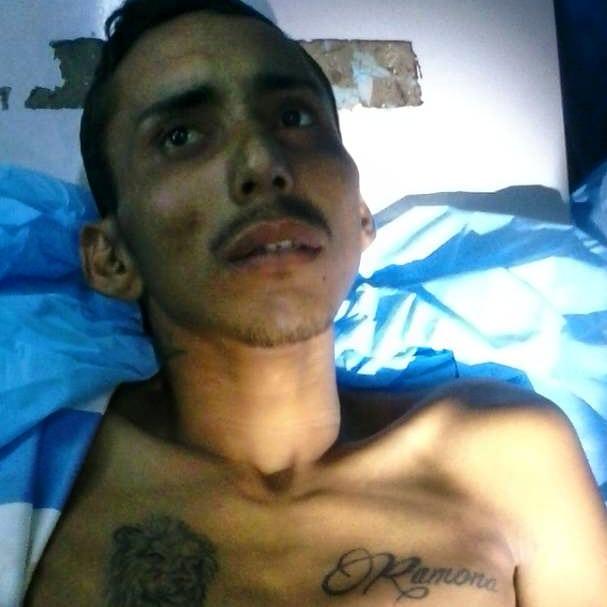Paludismo cobró la vida de indocumentado este jueves en El Tigre