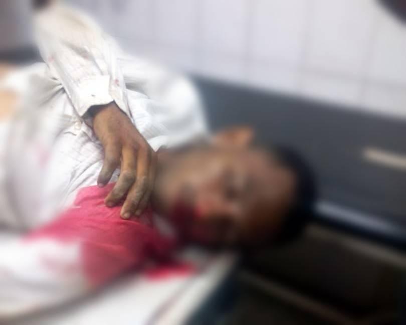 Un Poliguanipa lesionado y dos antisociales abatidos en sector Zulia